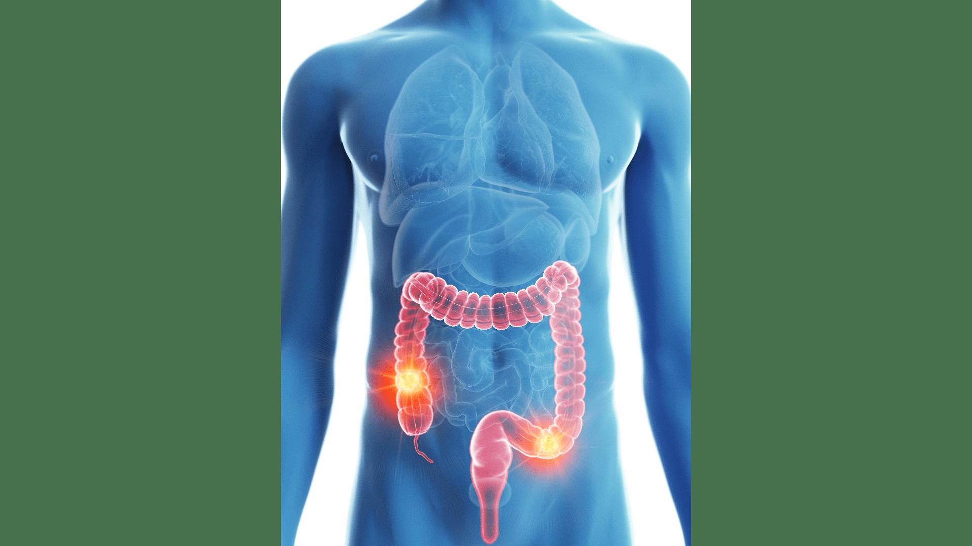 Darmkrebs Beschreibung und Definition