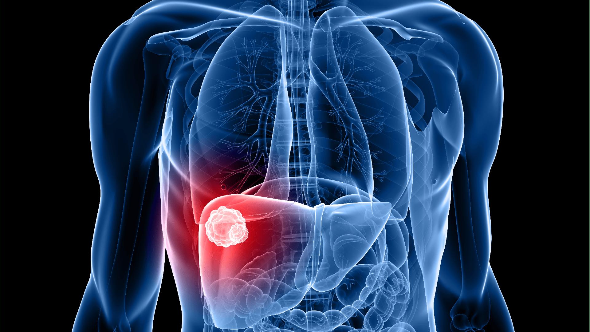 Leberkrebs Was sind die Ursachen und Symptome