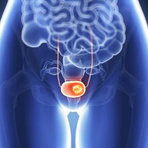 Was ist Blasenkrebs? Symptome