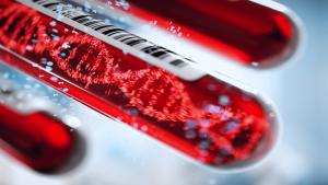 fruherkennung von krebs 1 300x169 - Ein Bluttest zur Erkennung von 50 Arten von Krebs
