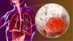 Enstehung und Behandlung von Speiseröhrenkrebs