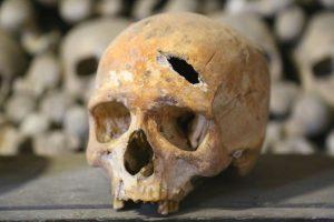 operationen damals 300x200 - Steinzeitmedizin: Was unsere Urväter schon beherrschten und wie es heute gemacht wird