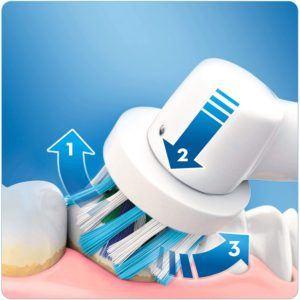 Quels types de brosses à dents électriques existe-t-il ?